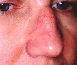 Капилляры на лице полопались