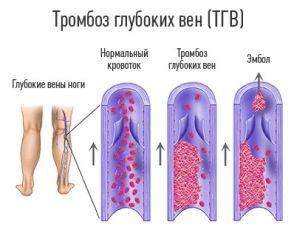 тромбоз глубоких вен