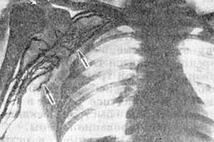 Вена плеча на рентгене