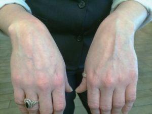 венозные руки