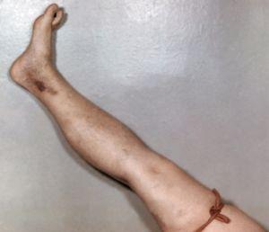 жгут на ноге