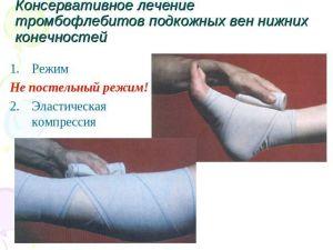 лечение тромбофлебита ног