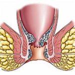 воспаление геморроидального узла