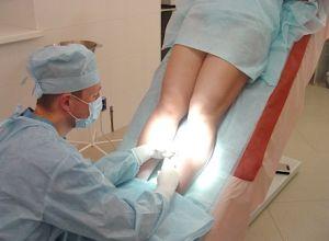 операция на венах