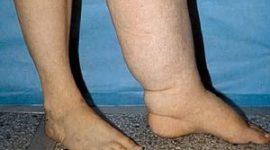 Отек ног