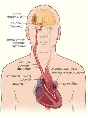 эмбол в легких