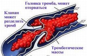 как возникает тромб