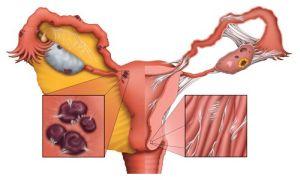 патологический процесс в яичках