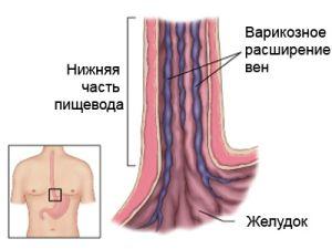 Воспаление вен пищевода