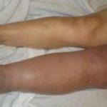 отек ног при тромбозе