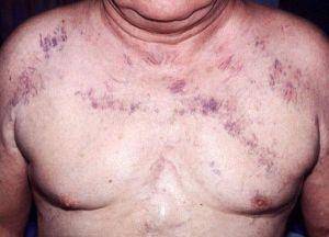 симптомы синдрома верхней полой вены