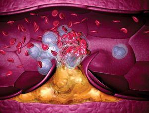 венозная гиперемия
