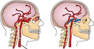 патология синуса кавернозного