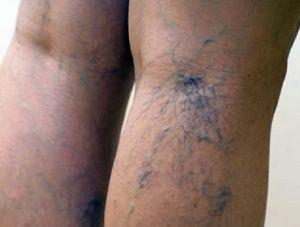 венозная сетка на ногах