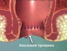 трещина в заднем проходе