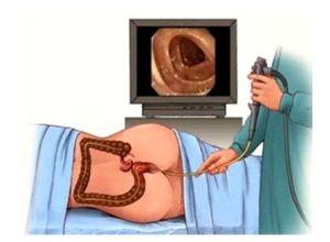 диагностика проктологом