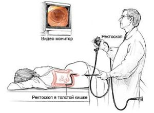 ректороманоскопия кишечника