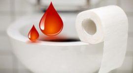 кал с кровью
