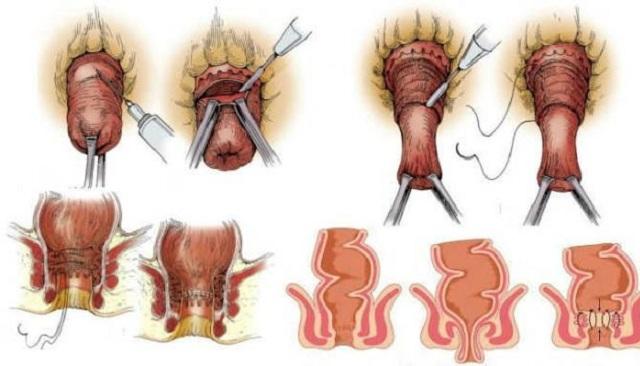 Операция при выпадении прямой кишки