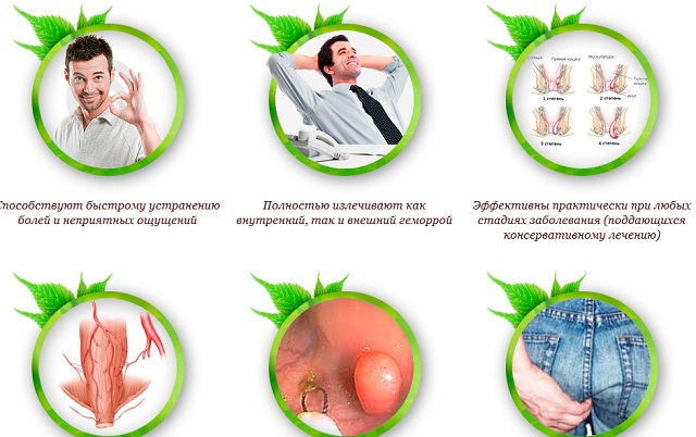 Плюсы пластыря anti hemorrhoids