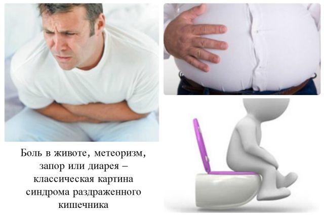 Симптомы СРК