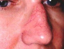 телеангиэктазии на лице