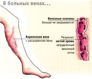 варикозные вены