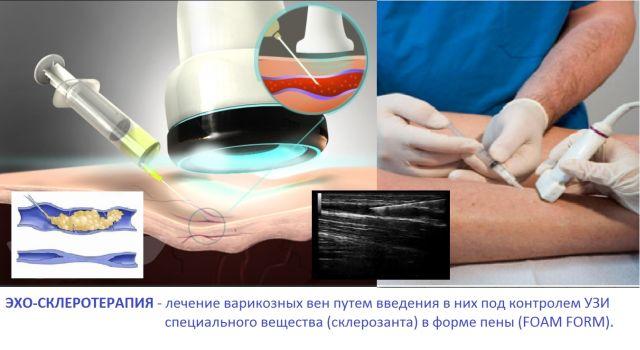 Процедура лечения вен