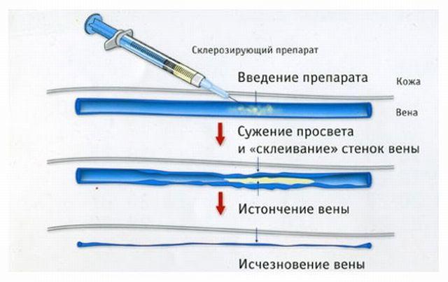как делается микросклеротерапия