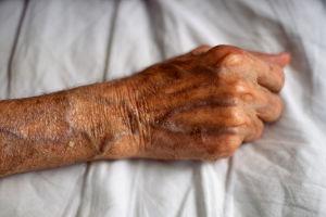 воспаление вены на руке