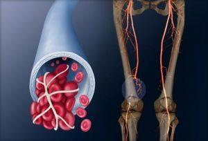 нарушение кровообращения нижних конечностей
