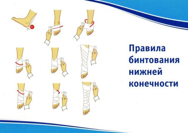 как бинтовать ноги