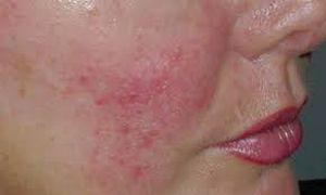 сетки капилляров на лице