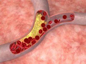 кровоток и инсульт