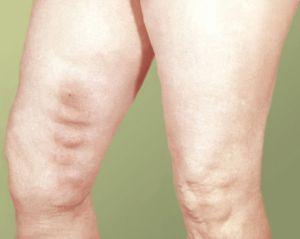 тромбы в ногах