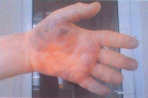 Тромбофлебит рук