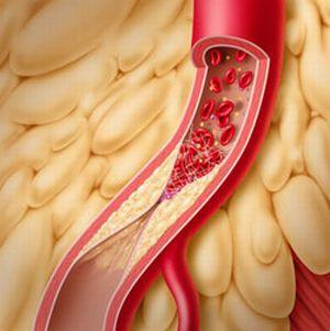 тромбозы вен