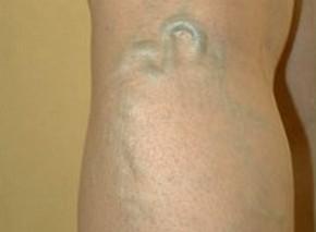 вена на ноге