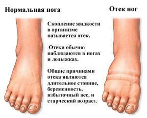 Здоровая и отечная нога