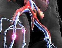 сводная - stopvarikoz 1 из 5 Context: венозная тромбоэмболия венозная тромбоэмболия
