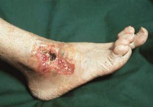 трофическая язва ноги