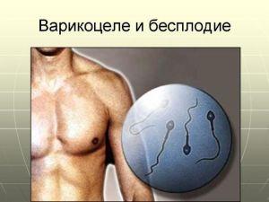 бесплодие после варикоцеле