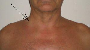 Повреждение в области вен плеча