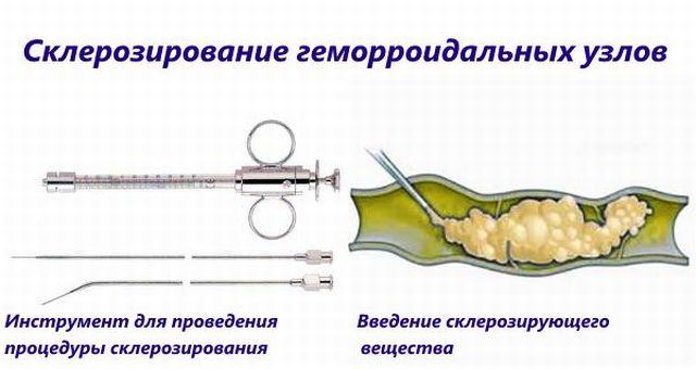 Склезирование узлов геморроя