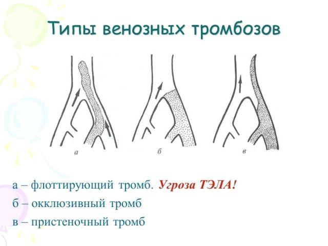 Типы венозных тромбозов