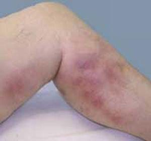 Тромбофлебит из-за вязкой крови