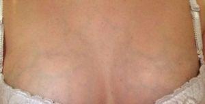 видно вены на груди