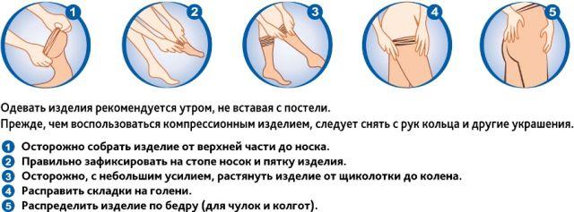 Как одевать белье для лечения вен