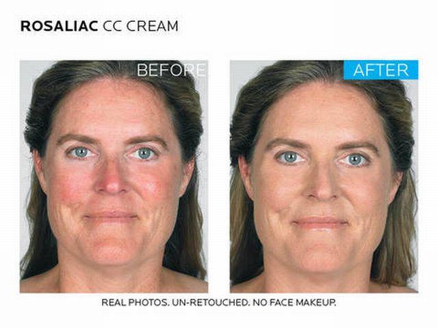 до и после применения крема