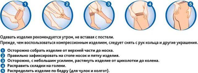Как одевать лечебное белье